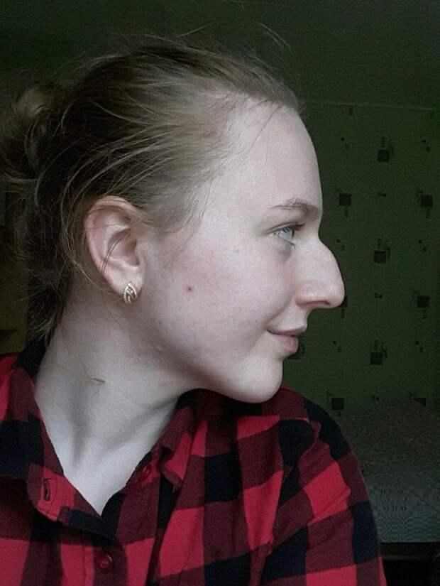 17 случаев, когда люди сначала не любили свои необычные носы, а потом приняли их как свои изюминки
