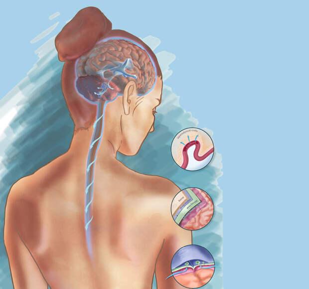 Шея и психосоматика: причины боли