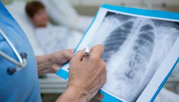 Статистика внебольничной пневмонии по-прежнему не радует