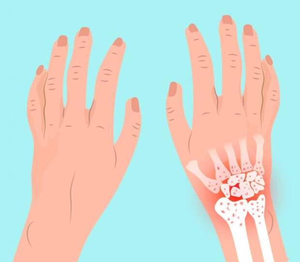 Травы, которые помогут в лечении ревматоидного артрита