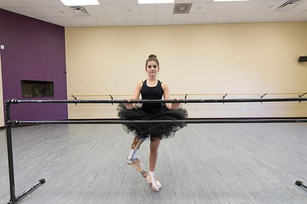 Она не сдалась: девочка, которой ампутировали ногу из-за рака, продолжила танцевать