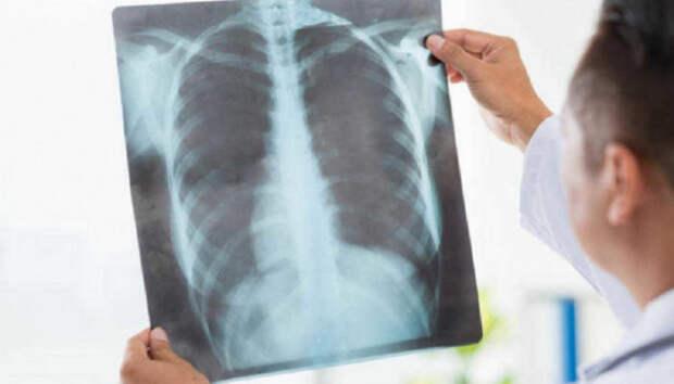 Число пневмоний в Карелии за сутки увеличилось на двенадцать