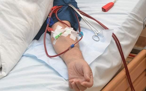 Коронавирус в четыре раза повышает риск смерти пациентов на диализе