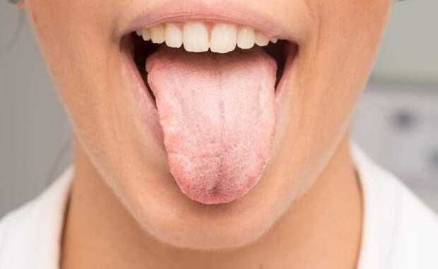 Сухость во рту и частое мочеиспускание: причины и к какому врачу обратиться