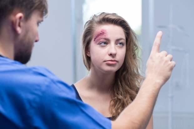Сотрясение головного мозга: симптомы, диагностика и первая помощь. Изображение номер 3