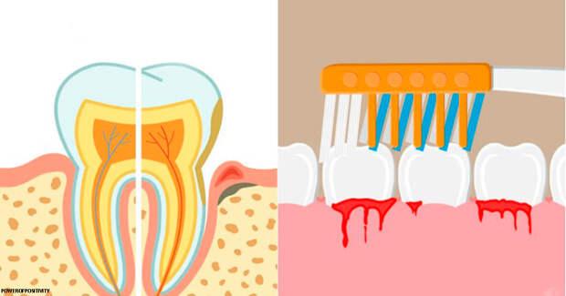 Стоматологи дали 10 советов о том, что делать, если у вас кровоточат десны