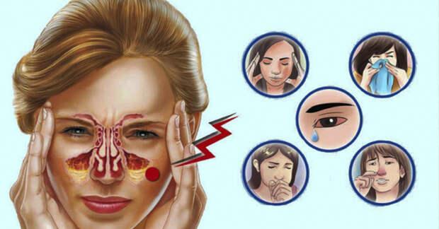 Травы от заложенности носа и облегчения головной боли