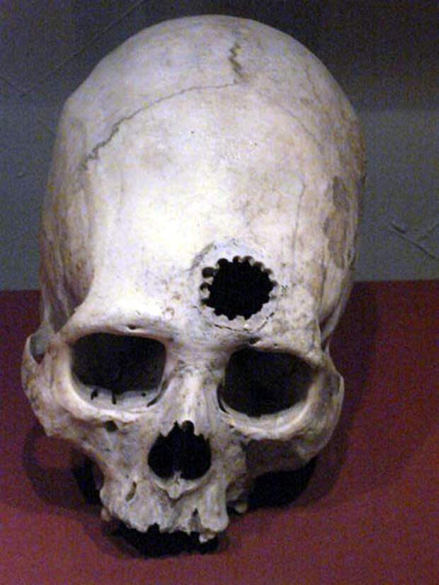 Трепанация — чудо древней медицины