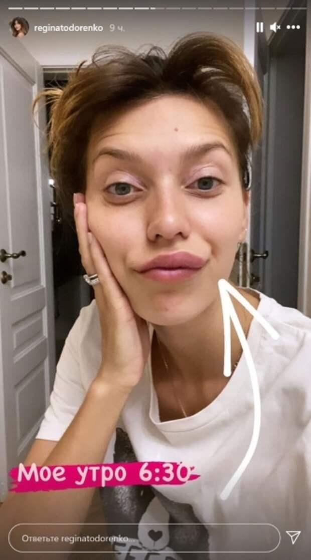 Побитая Тодоренко ужаснула опухолью на лице