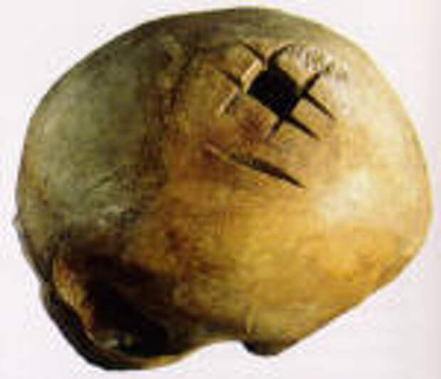 Трепанации в древнем мире и культ головы.