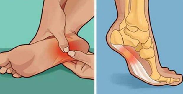 """Мне 50 лет, раньше на ноги не могла встать, а теперь """"порхаю"""", как в молодости. Уже 10 лет как ноги не болят!"""