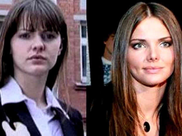 Лиза боярская до и после пластики носа