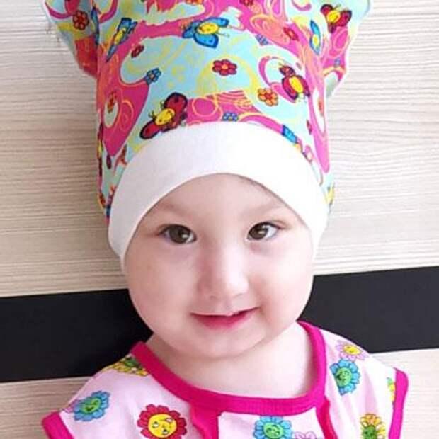 Самира Закирова, 2 года, врожденная левосторонняя косолапость, рецидив, требуется хирургическое лечение, 23274₽