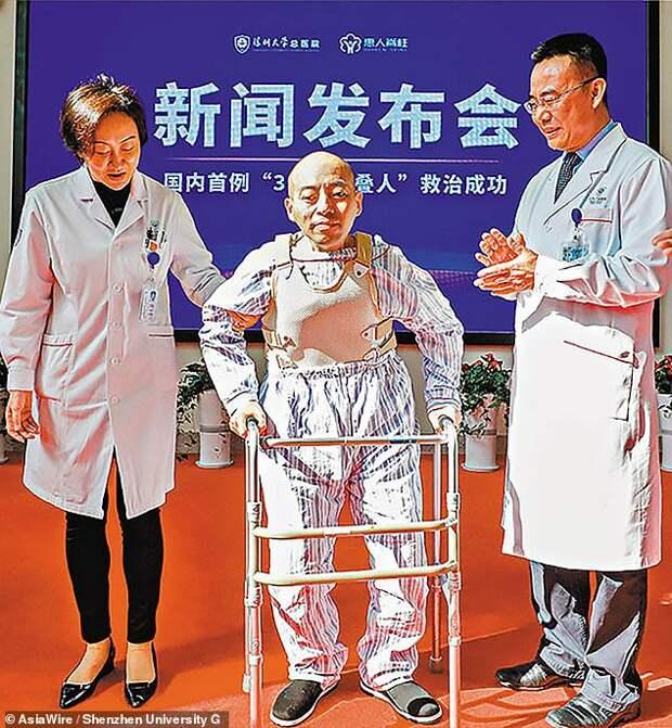 Житель Китая 20 лет прожил согнувшись пополам