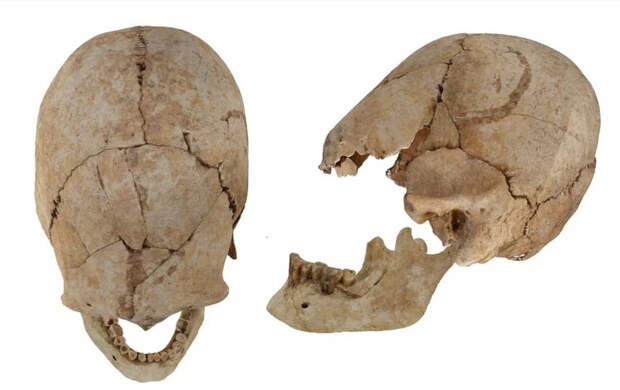 Амазонки с вытянутыми черепами