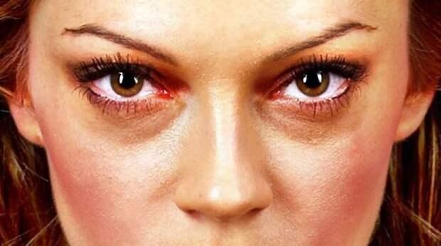 Врач назвала болезни, из-за которых могут появиться тёмные круги под глазами