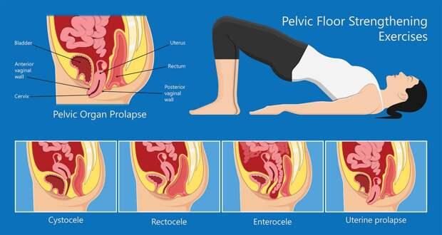 Как правильно выполнять упражнение Кегеля для женского и мужского здоровья
