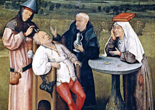 Трепанация - чудо древней медицины