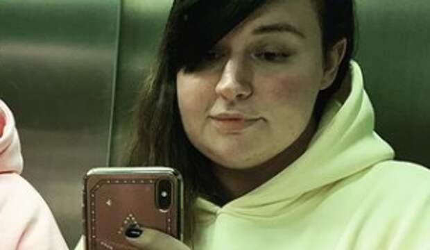 158-килограммовая Саша Черно с жуткими пятнами на лице пустилась в пляс