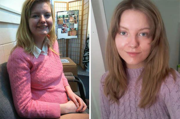 Люди показали, как они выглядели до и после того, как взялись за свою внешность