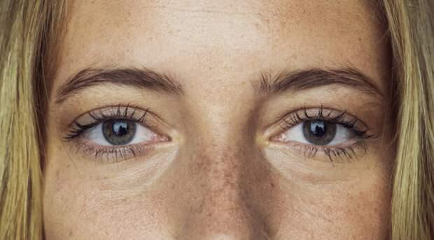 Темные круги под глазами: причины появления, способы устранения