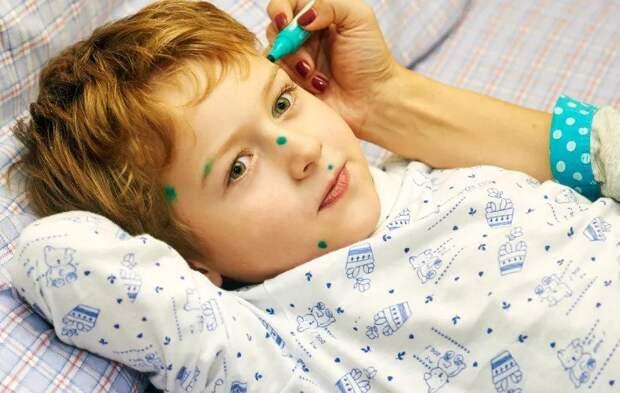 Вакцинация от ветряной оспы: что нужно знать каждому
