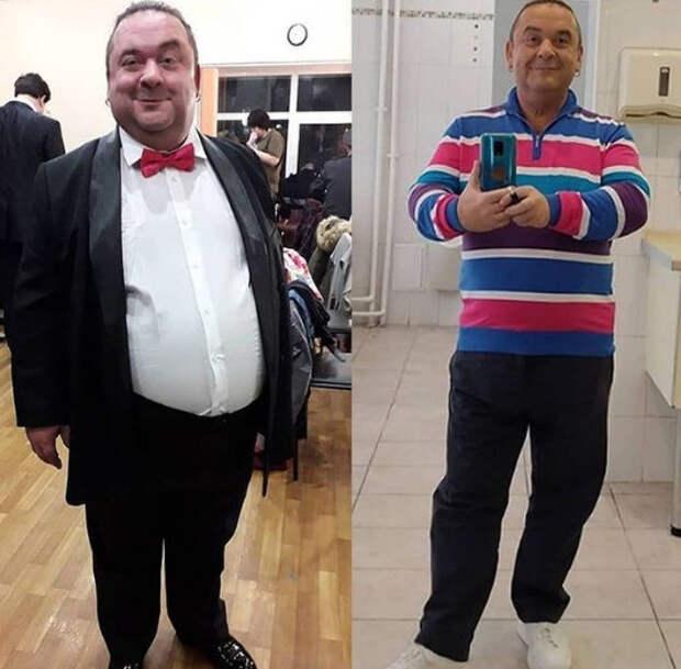 Исхудавшему Александру Морозову удалили лишнюю кожу: «Операция длилась 7 часов, все болит»