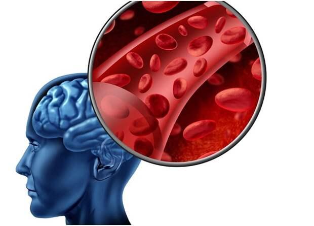 Почему происходит микроинсульт — признаки, лечение, последствия...
