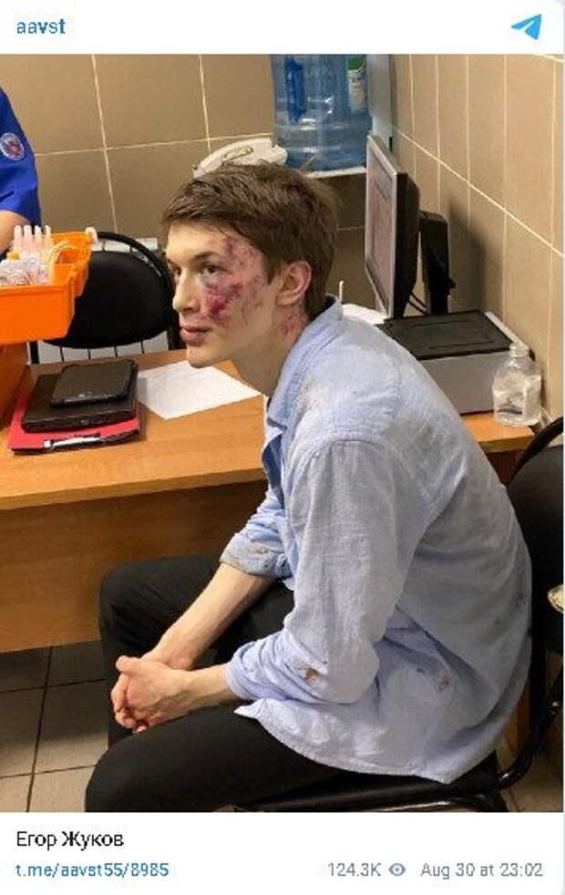 В Москве  избили бывшего фигуранта «московского дела» Егора Жукова