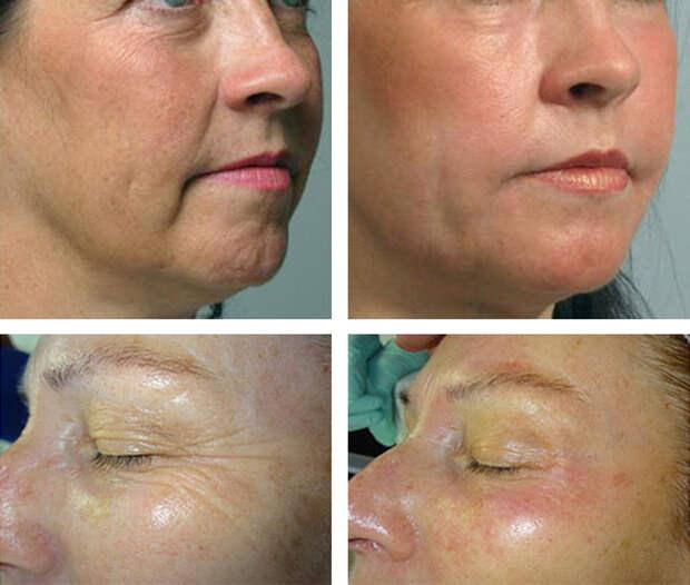 Мезотерапия кожи лица — описание процедуры и отзывы