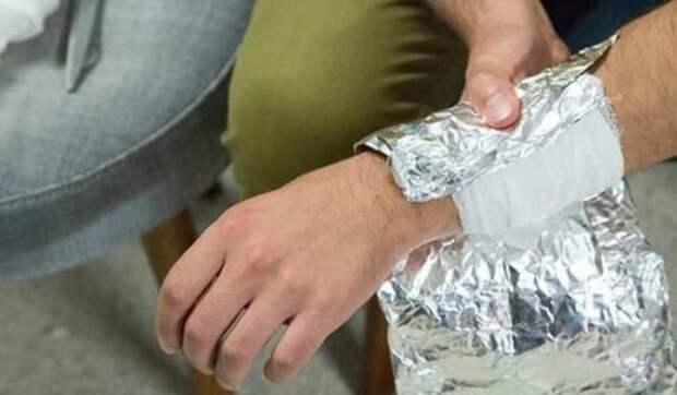 С помощью фольги можно лечить небольшие ожоги. /Фото: cn15.nevsedoma.com.ua