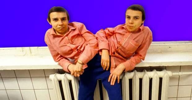 Психопатка и романтик: 9 фактов о сиамских близнецах Кривошляповых