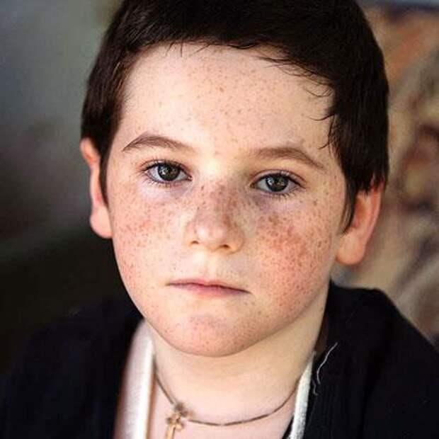 Вова Орлов, 9 лет, несовершенный остеогенез, спасет операция, 818000₽