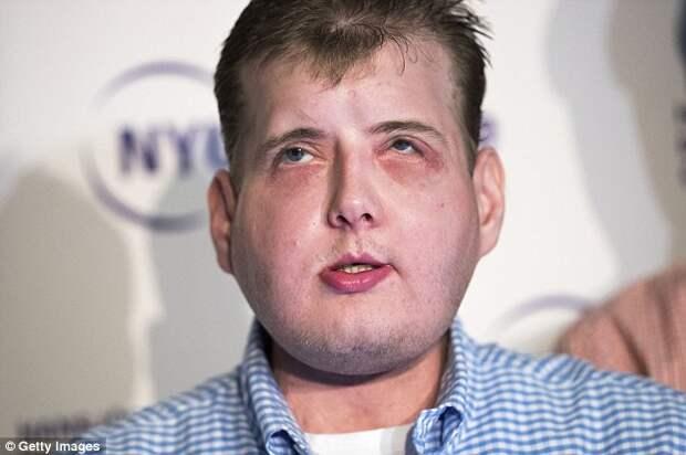 Пожарному из Нью-Йорка полностью пересадили лицо, и он привыкает к новой жизни