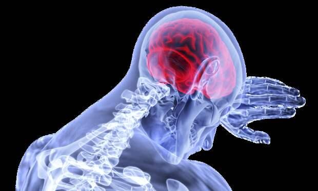 Врач-невролог назвала 8 способов предотвратить инсульт
