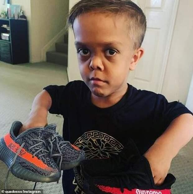 Большое сердце маленького человека: американский комик собрал 200 тысяч долларов, чтобы помочь мальчику-карлику