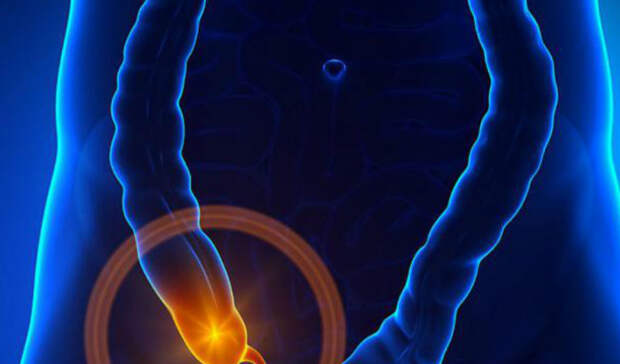 5 признаков скорого аппендицита: как тело предупреждает об угрозе