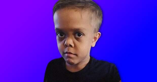 5 грустных фактов о мальчике с дварфизмом Квейдене Бейлсе, которого затравили и обвинили в вымогательстве