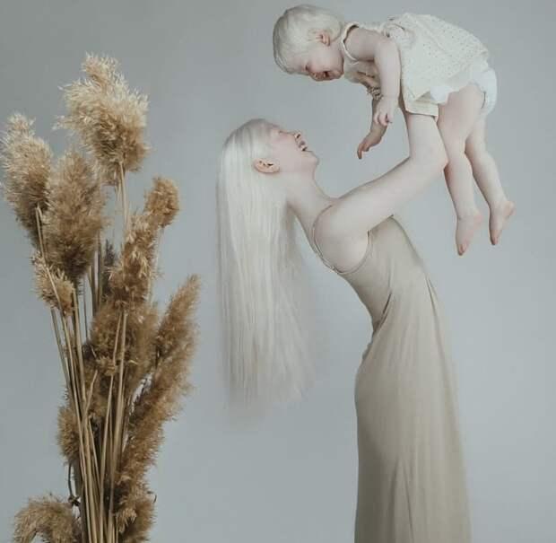 Удивительные сестры-альбиносы из Казахстана поражают мир своей необычной красотой