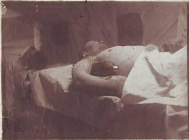 Невероятная история спасения солдата с неразорвавшейся миной в руке