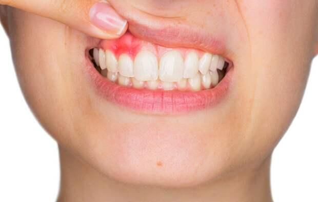 Как не растерять здоровые зубы, и почему нельзя запускать пародонтоз? Причины, простые советы по оздоровлению