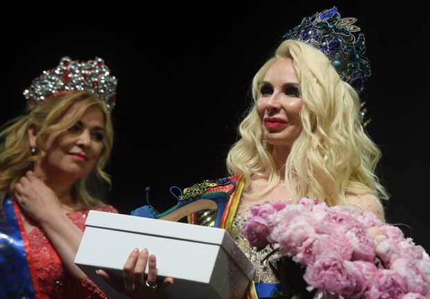Сомнительные красавицы: королевы красоты, чья внешность вызвала бурную реакцию в Сети