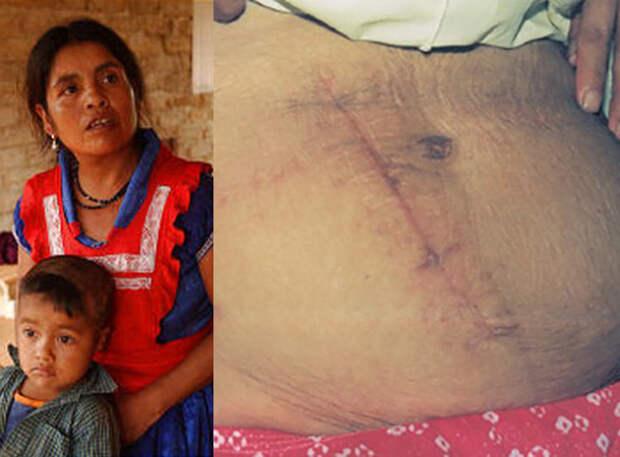 Фото №3 - 5 невероятных историй о людях, которым пришлось делать операцию самим себе