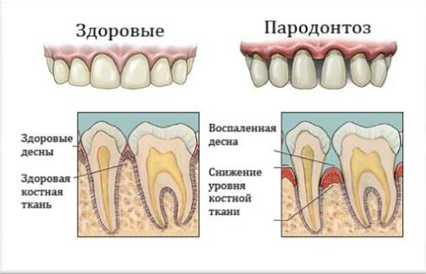 фото: https://medmanual.ru