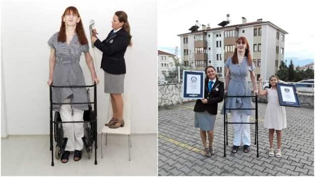 Женщина из Турции с ростом 215 см признана самой высокой в мире