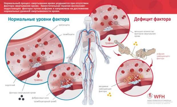 17 апреля — Всемирный день гемофилии