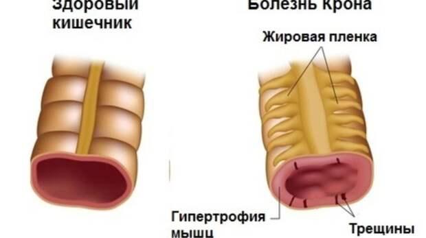 Болезнь Крона: симптомы, причины и лечение