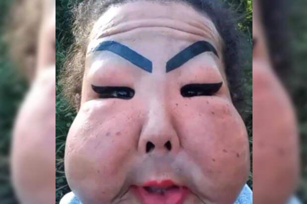 Лицо женщины раздулось до огромных размеров после ввода силикона