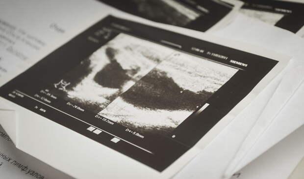 Машина флюорографии приехала врайон Белгородской области, нонепринимала пациентов