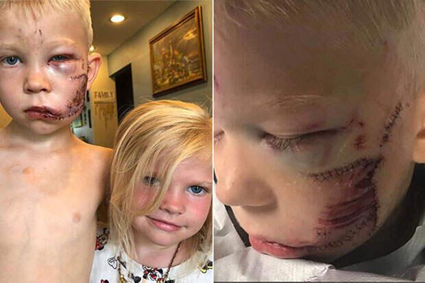 Шестилетний мальчик спас сестру от собаки и «был готов умереть»